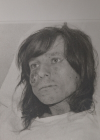 Jiří Legerský, a secret religious from Opava suffering from skin cancer