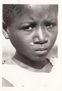 Fotografie dítěte s neštovicemi, Kongo, 60. léta
