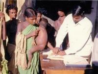Indický lékař při očkování proti pravým neštovicím, Indie, 70. léta