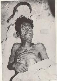 Ind postižený pravými neštovicemi, Indie, 70. léta