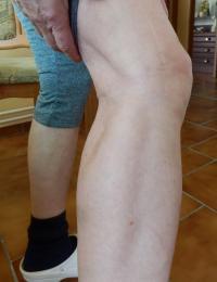 Jizvy po střelném zranění Petry Erbanové z 21. 8. 1968 (horní část lýtka a koleno)