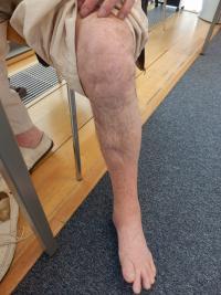 Jizvy po střelných zraněních Petra Šídy z 21. 8. 1968 (průstřel chodidla, 2x holeně a kolena)